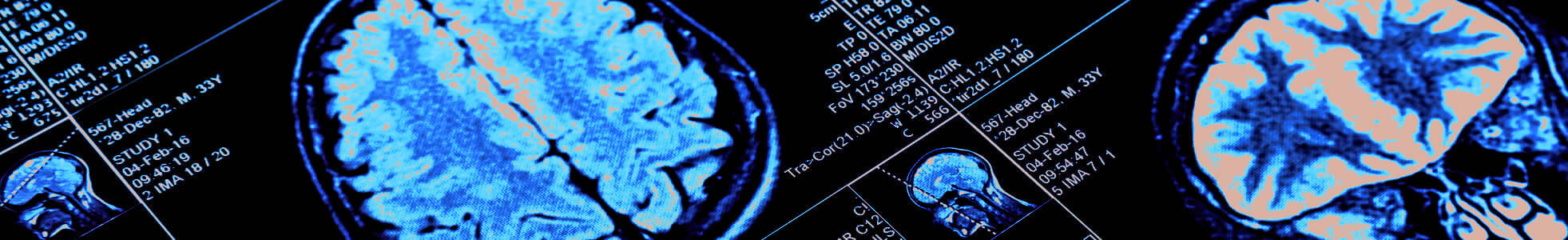 Vascular & Interventional